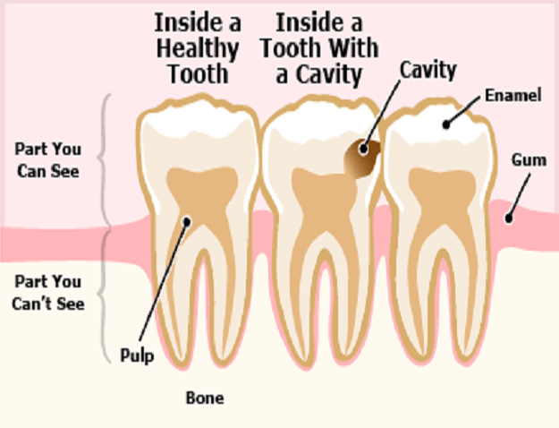 avoid-cavity-in-teeth